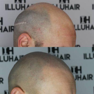 Illuhair kan fjerne ar efter hårtransplantation